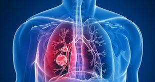 ۷ نشانه سرطان ریه در زنان را بشناسید