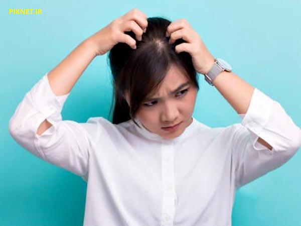 درمان های خانگی برای شوره و خارش پوست سر